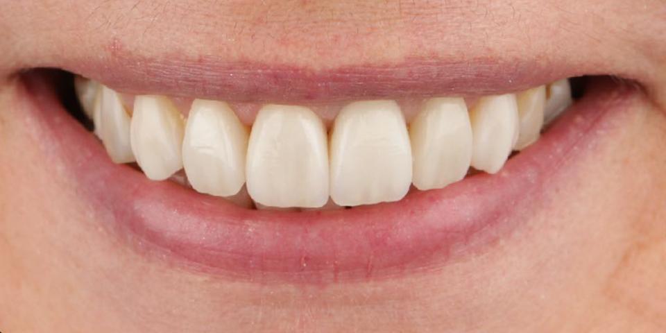 Intro image of: Een nieuwe, stralende glimlach
