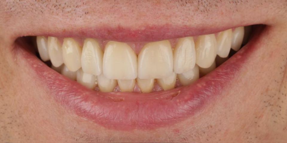 Intro image of: Herstel afgebroken tanden en kauwfunctie