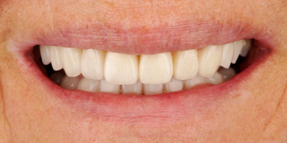 Intro image of: Volle lach en betere lipondersteuning