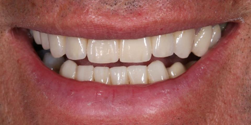 Intro image of: Betere kauwfunctie en frisse lach