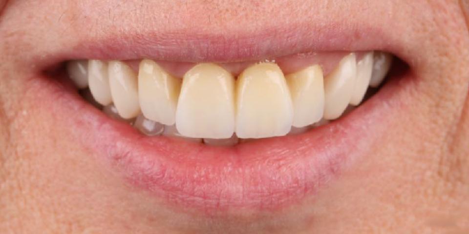 Intro image of: Verloren snijtand vervangen en tandstand corrigeren