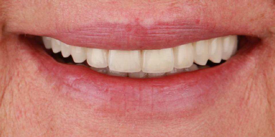 Intro image of: Oude kronen vervangen en ontbrekende tanden aanvullen